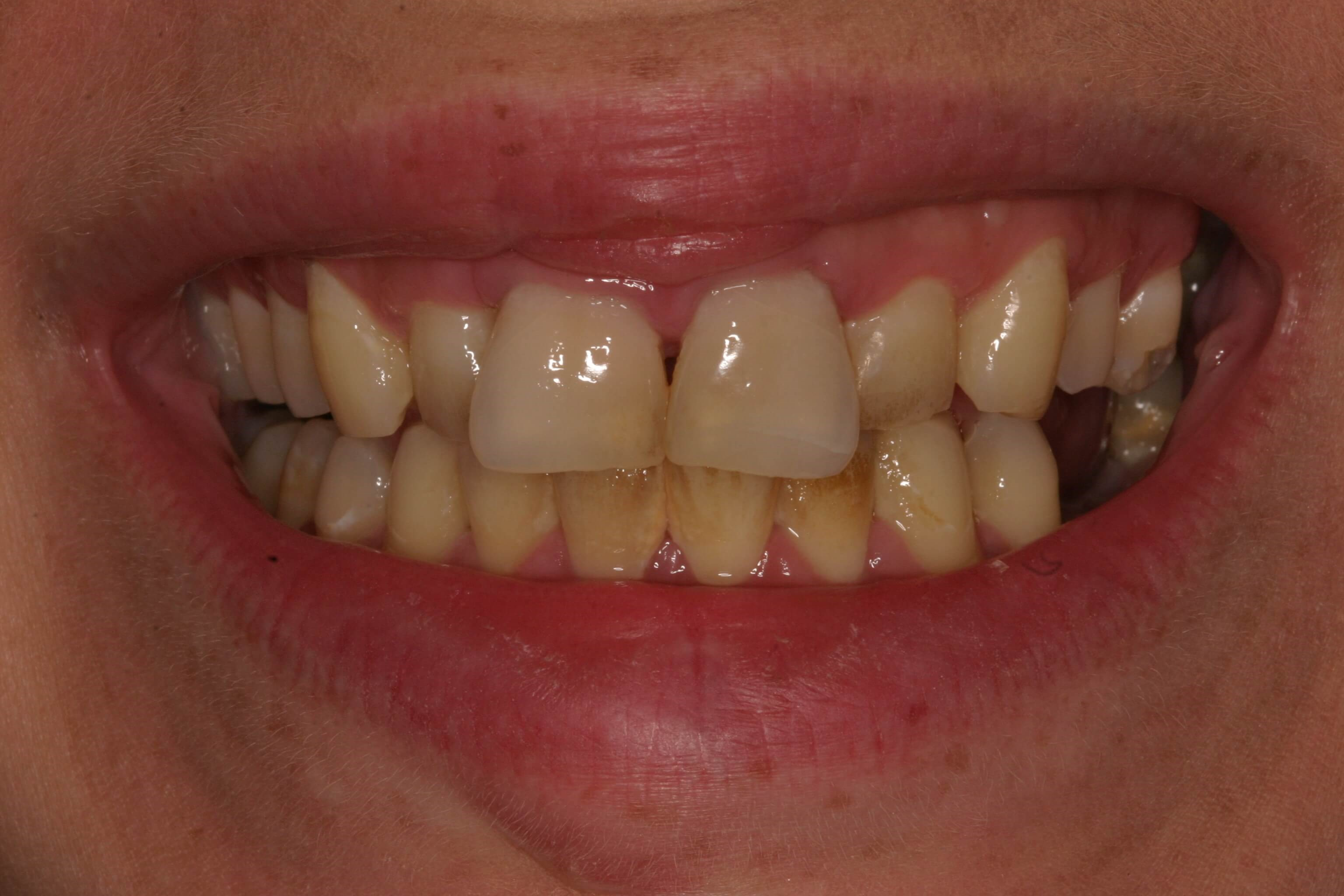 Veneers Resolve Crowding Before