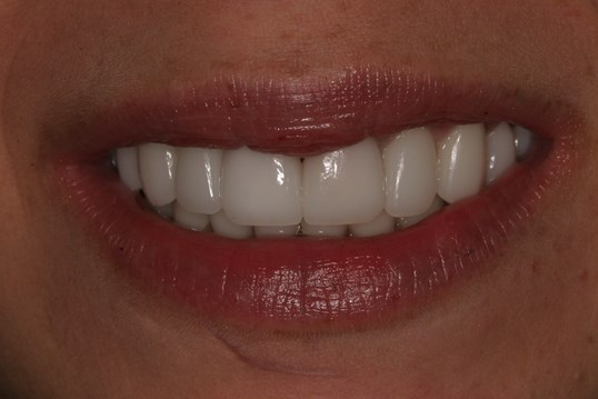 Veneers Resolve Crowding After