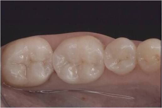 Onlays Save Tooth Structure After