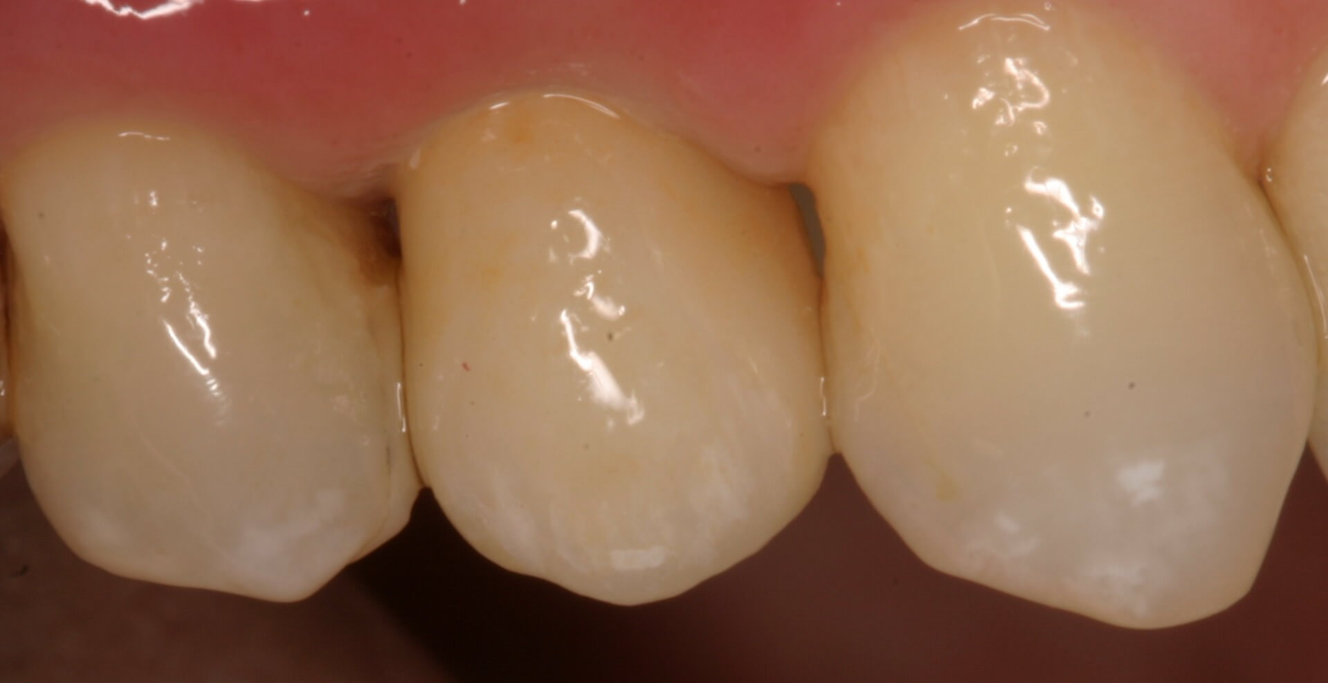 Implant Crown Disappears After