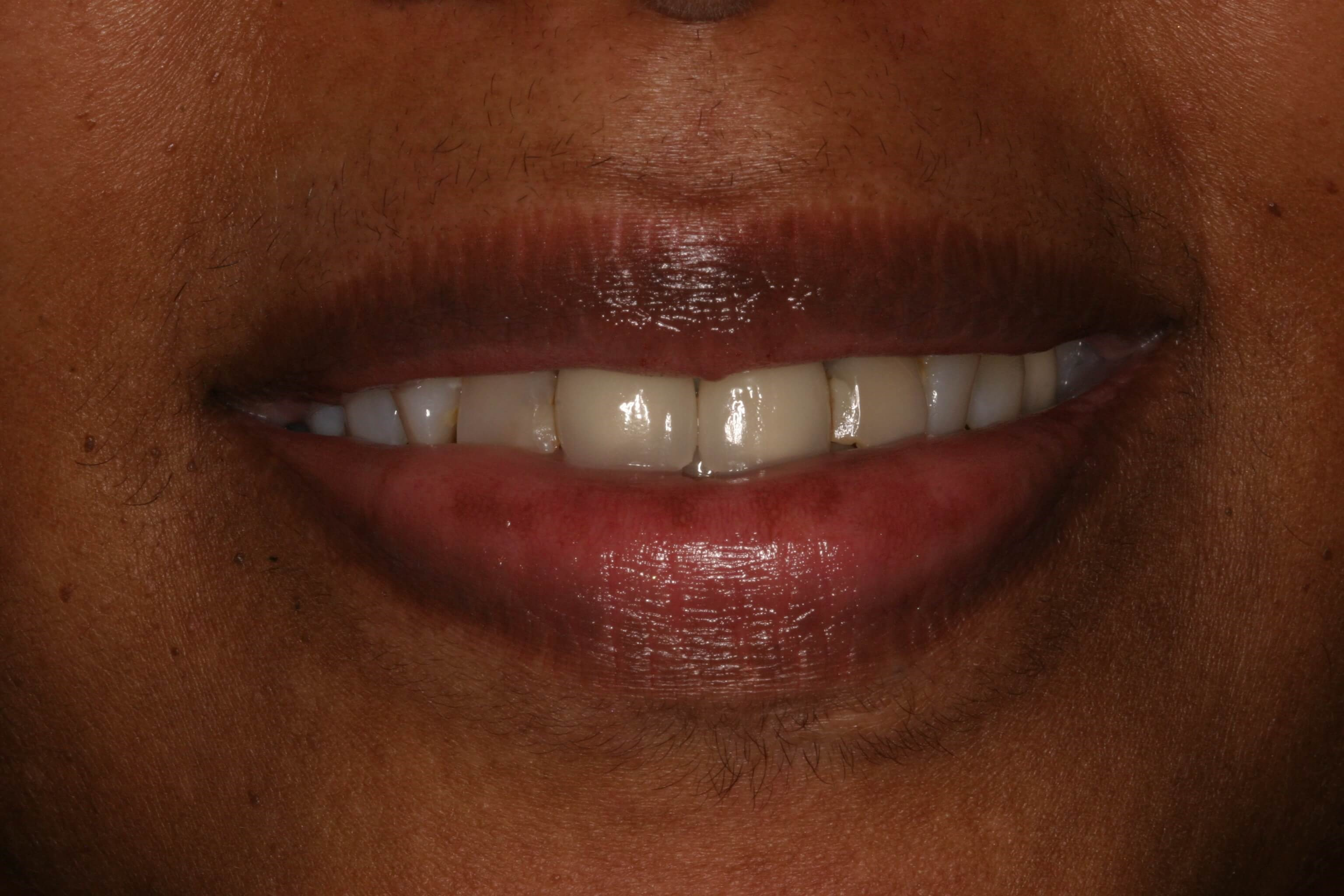 New Crowns And Veneers Before