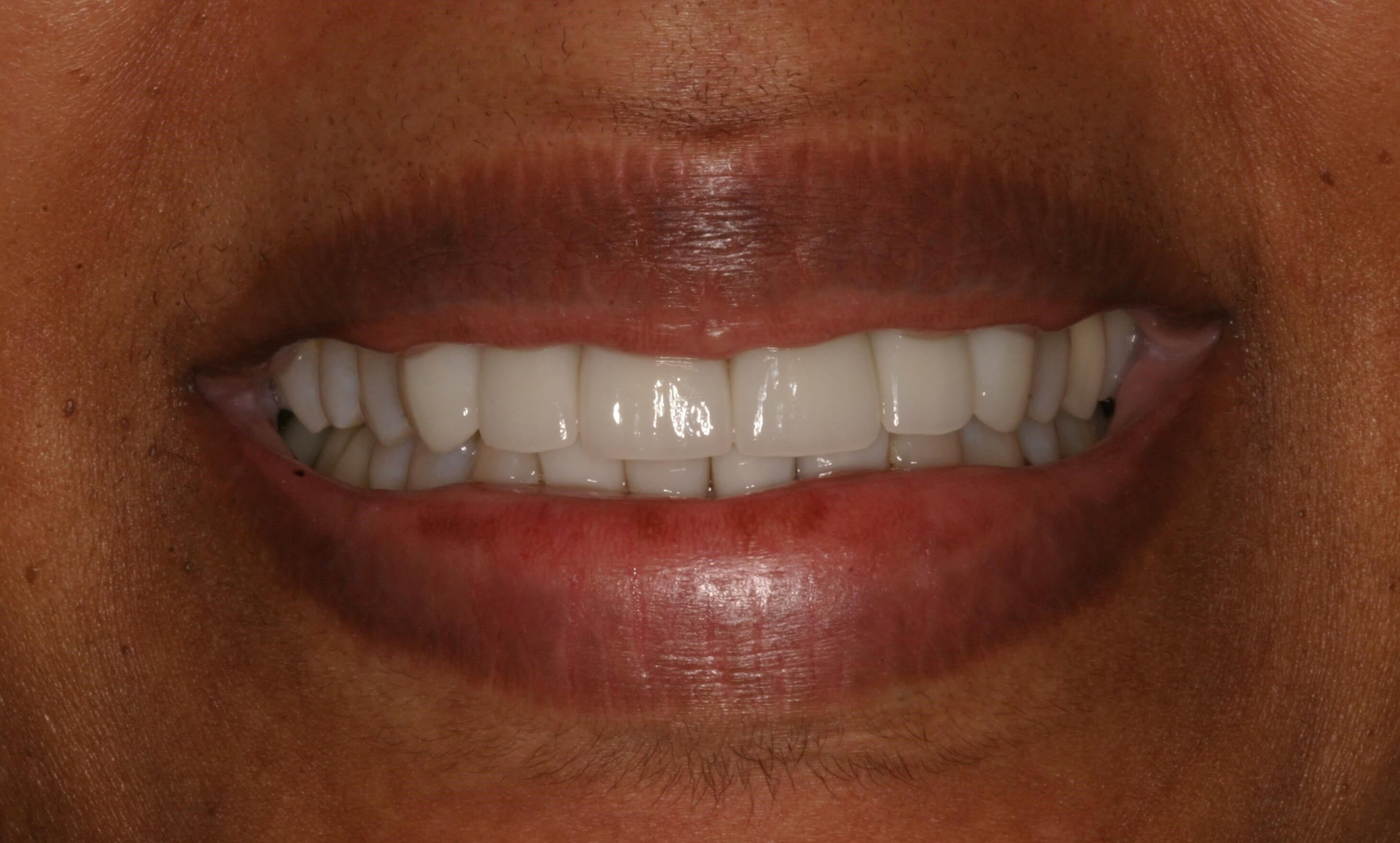 New Crowns And Veneers After