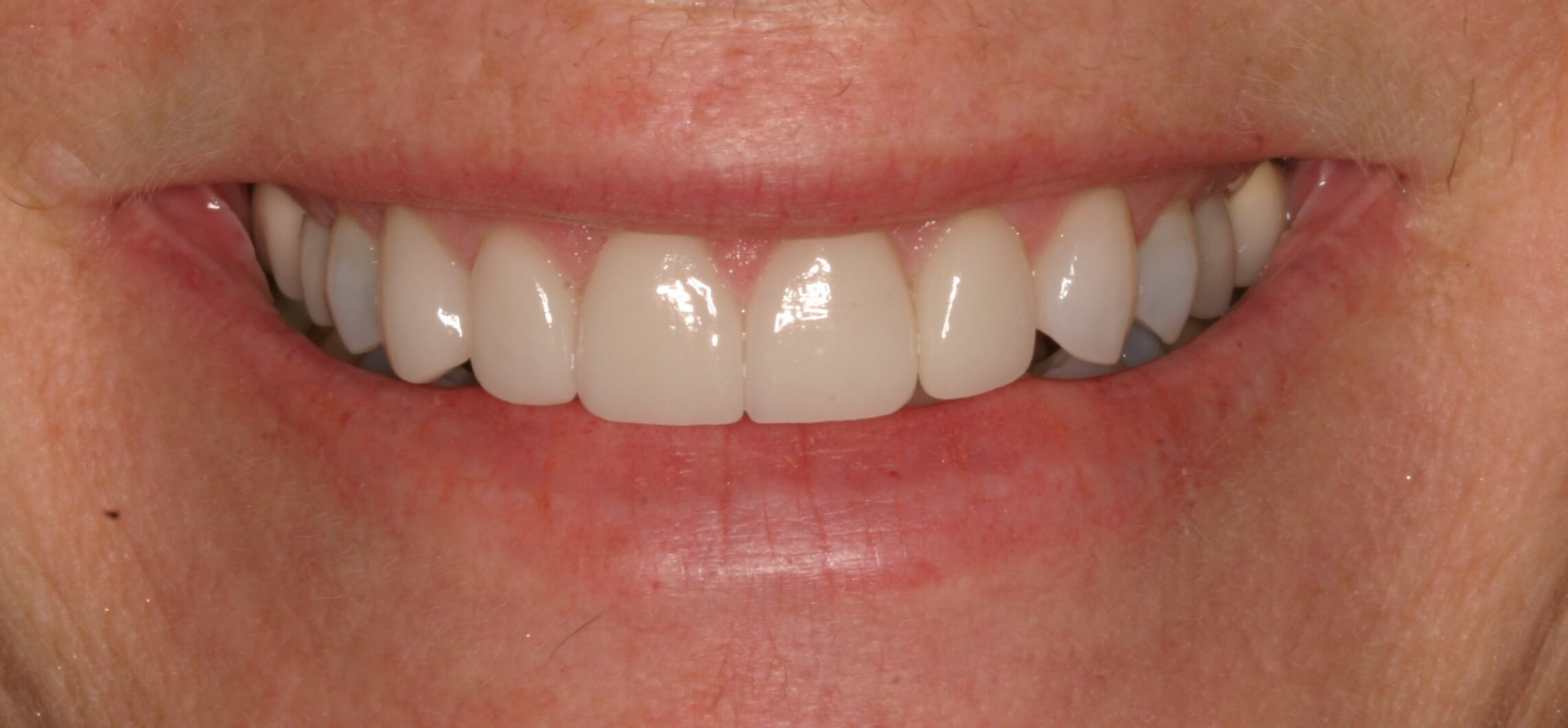 Bad bBte And Chipping Of Teeth After