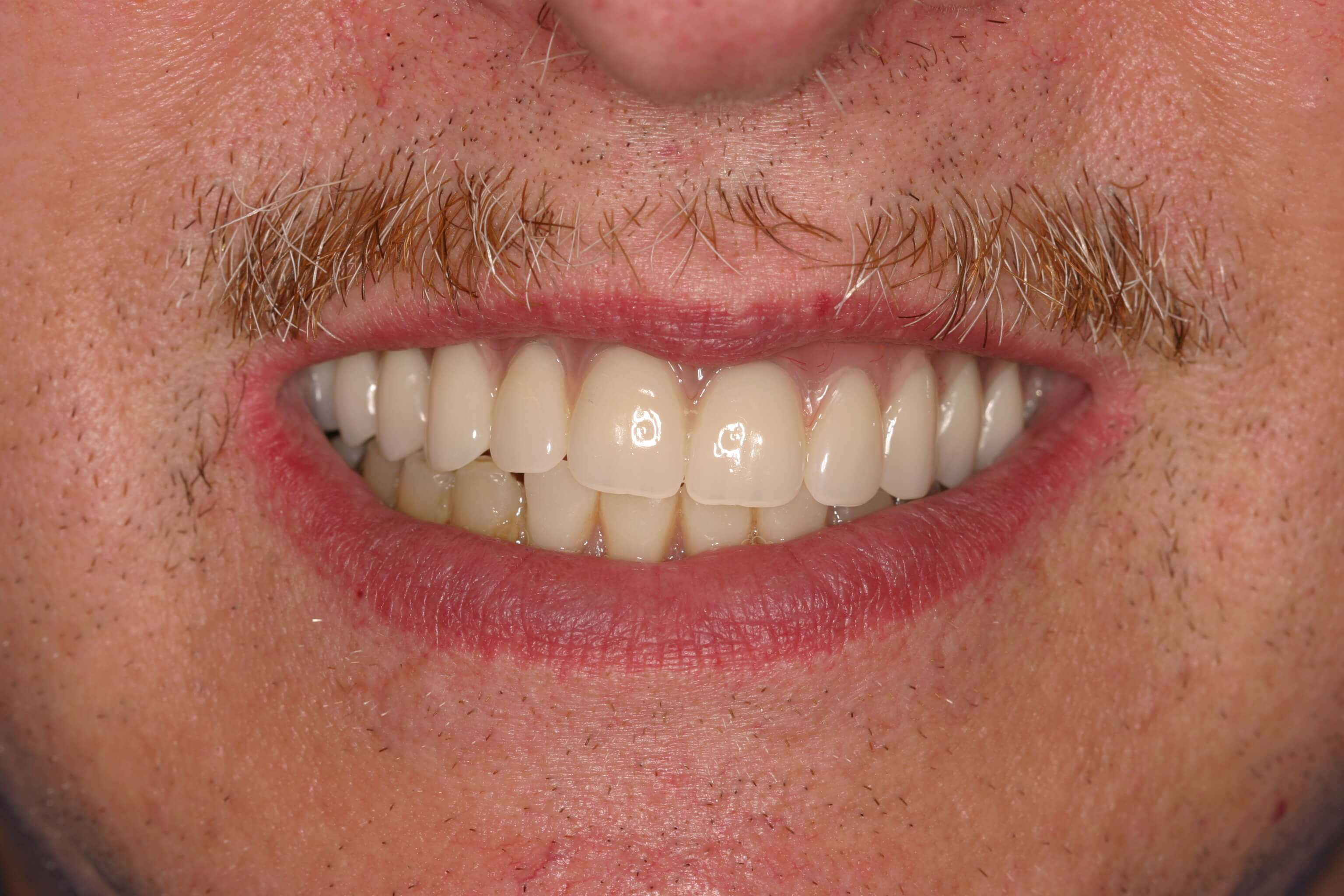 Amazing New and Natural Teeth After