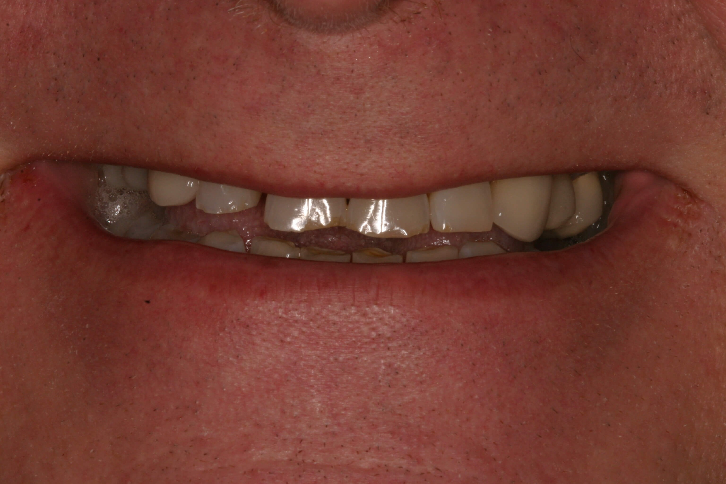 After Dental Implants Before