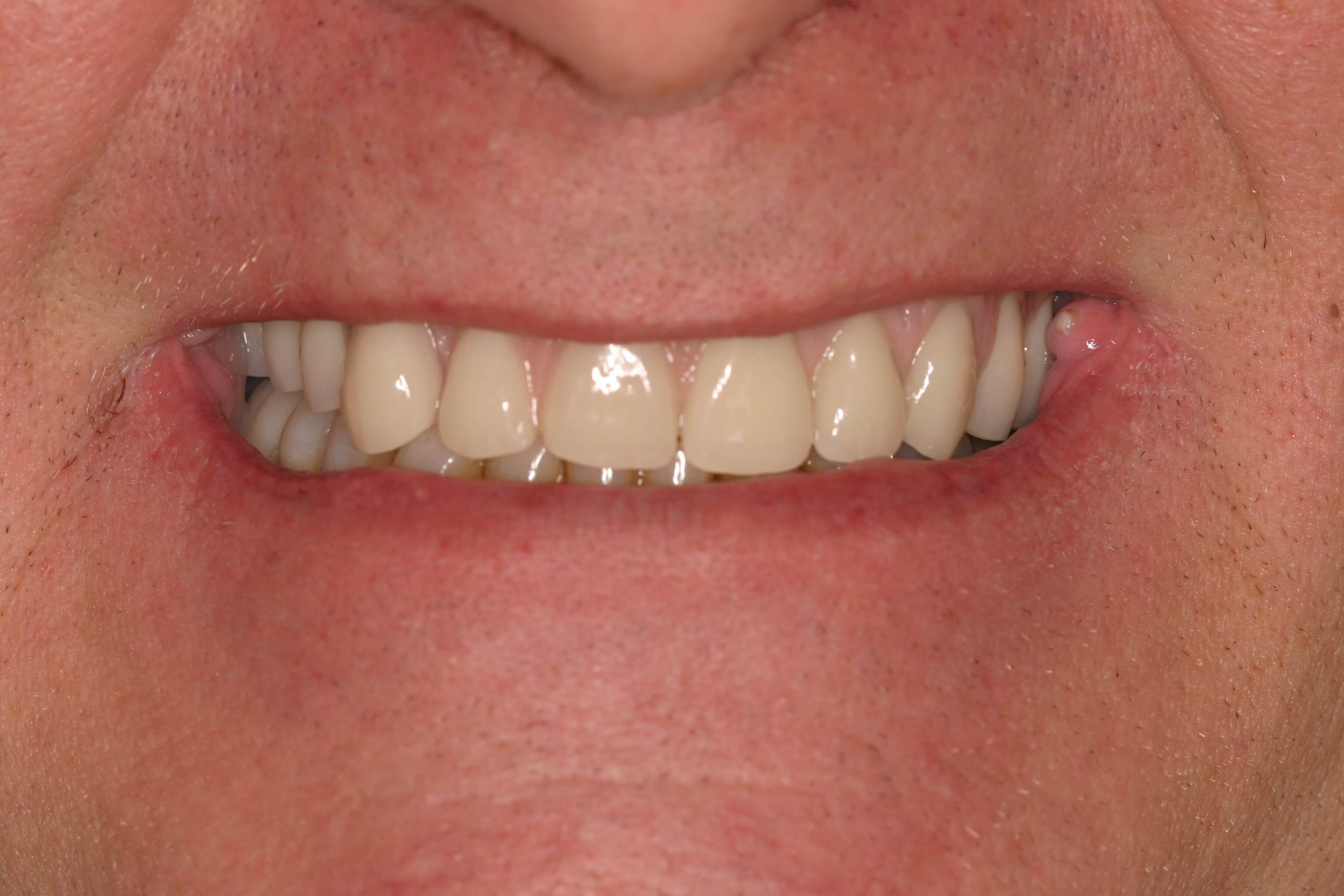 After Dental Implants After