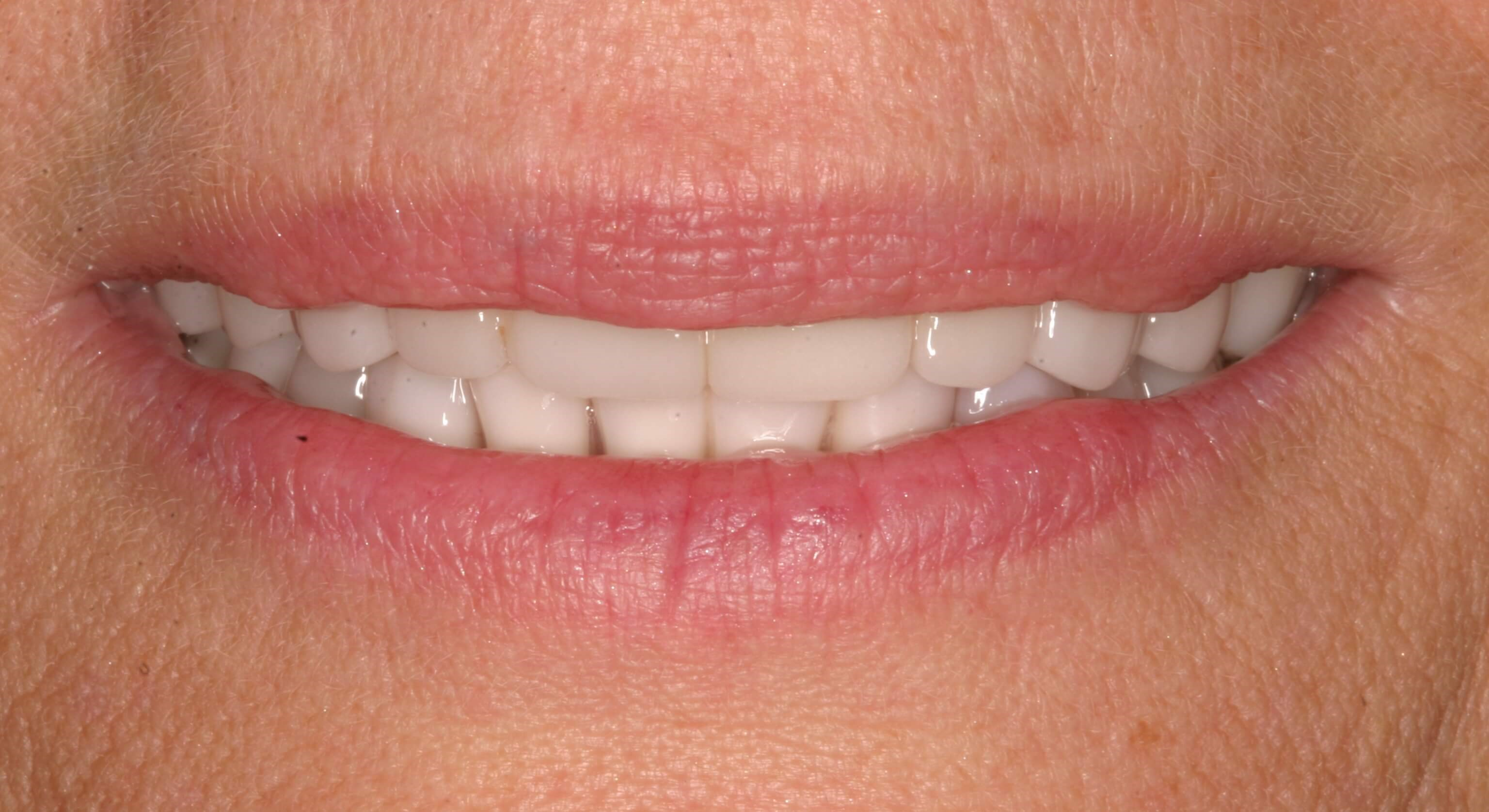 New Filled-Out Smile! After