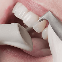 Drill-Free Fillings*