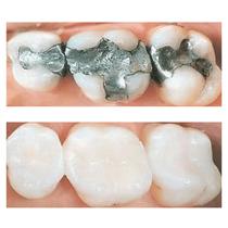 Tooth-Colored Fillings*
