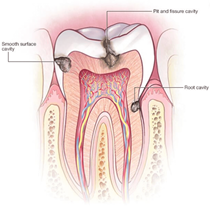 Tooth Decay/Cavities*