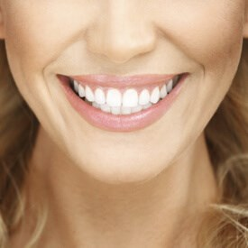 Smile Makeover Image