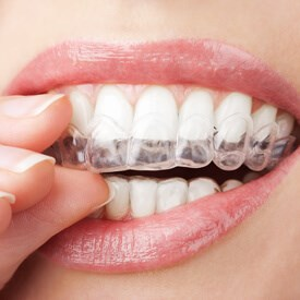 Invisalign Clear Braces Image